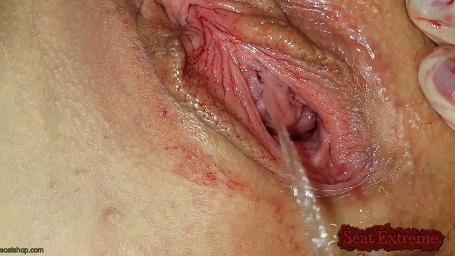 Anna Coprofield FullHD 1080p Shit and Blood Vol.8 Speculum [Solo, Defecation, Extreme Scat, Scatology]